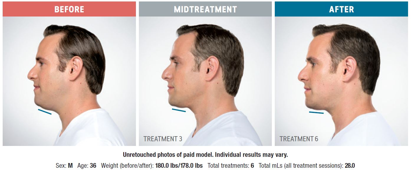 Kybella Men Before and After